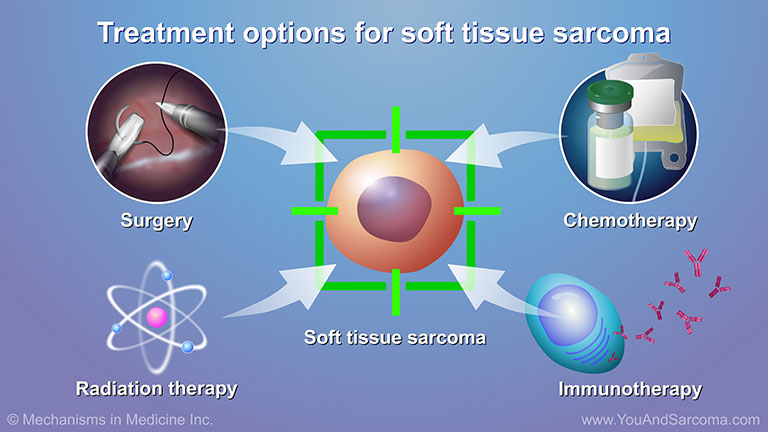 Diagnosing and Treating Soft Tissue Sarcoma