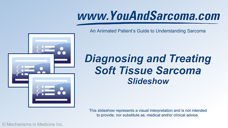 Slide Show - Diagnosing and Treating Soft Tissue Sarcoma